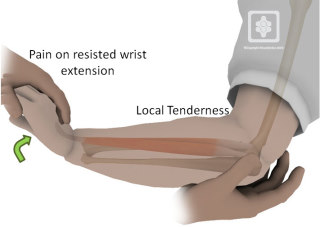 Tennis Elbow | ShoulderDoc