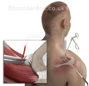 Suprascapular Nerve Palsy | ShoulderDoc