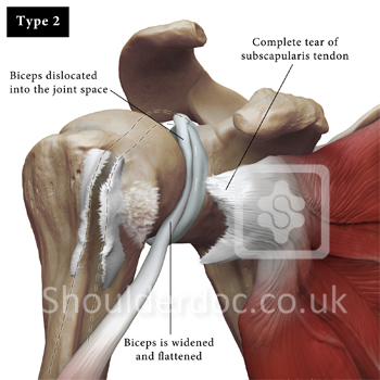 Biceps Tendon Classifications Shoulderdoc By Prof