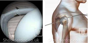 Biceps Tenotomy | ShoulderDoc by Prof  Lennard Funk