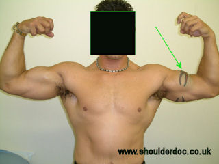 types of steroid injections for arthritis