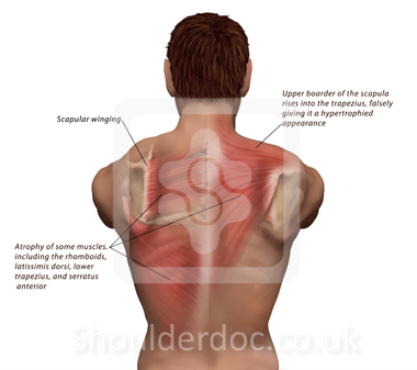 Exercises scapular winging pdf