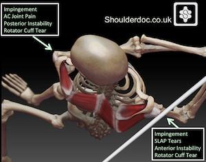 golf shoulder injuries  shoulderdocprof lennard funk