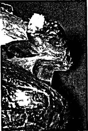 Arthroscopic Subacromial Decompression Shoulderdoc By