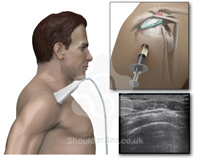 subacromial steroid injection cpt code