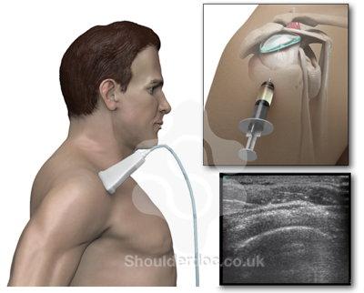 deltoid steroid injection needle size
