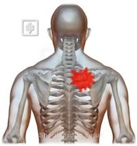 Interscapular Pain | ShoulderDoc