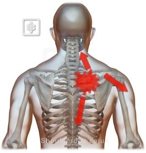 interscapular pain  shoulderdocprof lennard funk