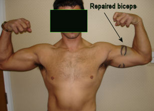 Proximal Biceps Tendon Rupture  Symptoms amp Treatment