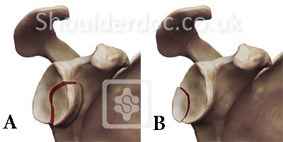Rim Fracture Type 1 Glenoid Rim Fractures
