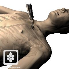 Shoulder Distal Clavicle Excision