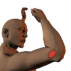 Tennis Elbow ShoulderDoc