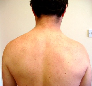 Trapezius muscle wasting on right side